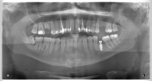 12M-implantology-2019-2020