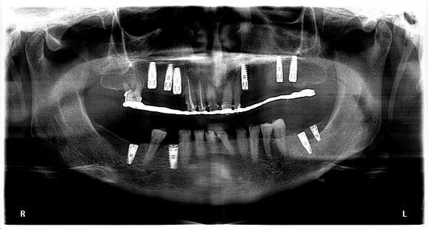 13M-implantology-2019-2020