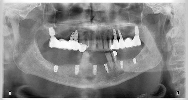 14M-implantology-2019-2020