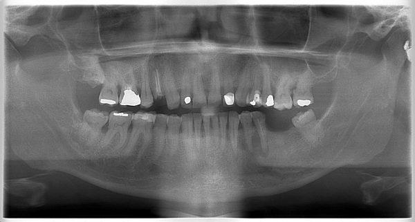 15P-implantology-2019-2020