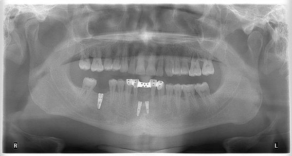 17M-implantology-2019-2020
