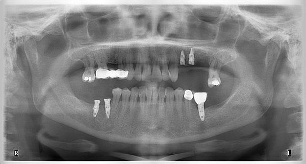 19M-implantology-2019-2020