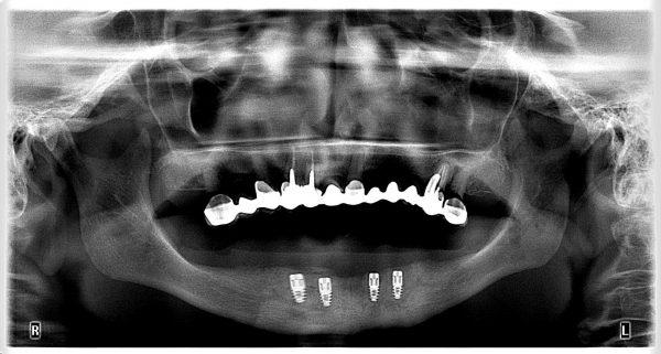 22M-implantology-2019-2020