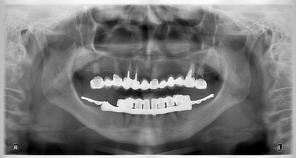 22P-implantology-2019-2020