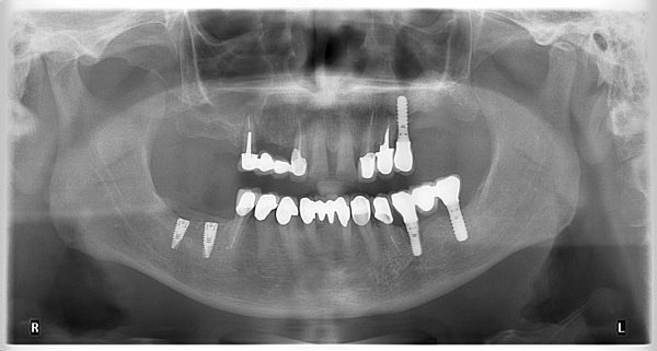 25M-implantology-2019-2020