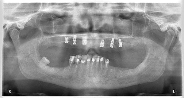 26M-implantology-2019-2020