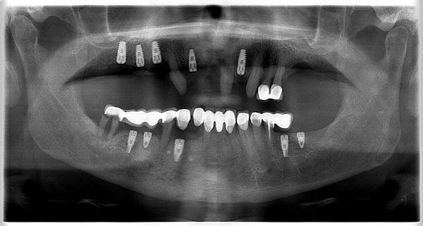28P-implantology-2019-2020