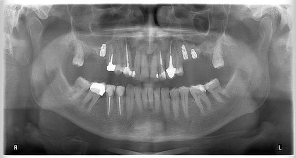 29M-implantology-2019-2020