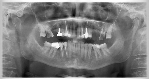 29P-implantology-2019-2020