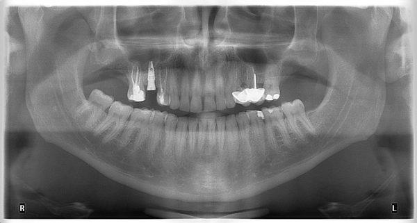 2M-implantology-2019-2020