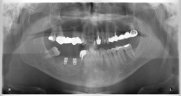 30M-implantology-2019-2020