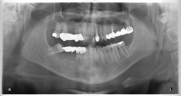 31P-implantology-2019-2020