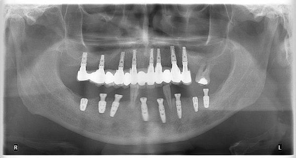 33M-implantology-2019-2020