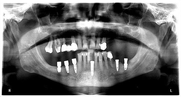 34M-implantology-2019-2020