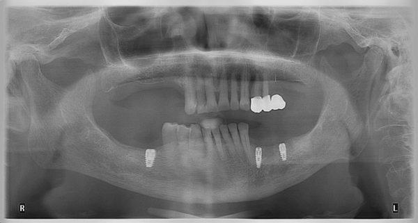 35P-implantology-2019-2020