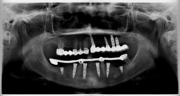 38P-implantology-2019-2020