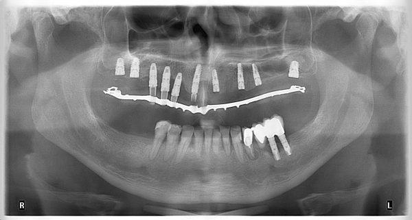 45M-implantology-2019-2020