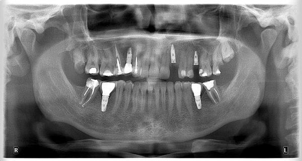 7M-implantology-2019-2020